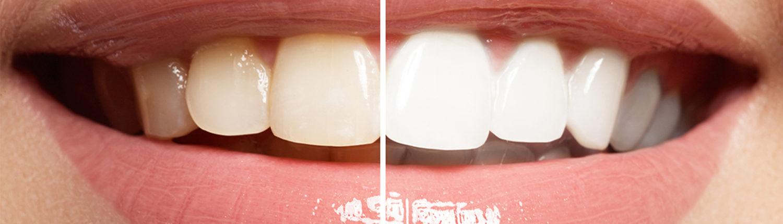 odontologia estetica en madrid