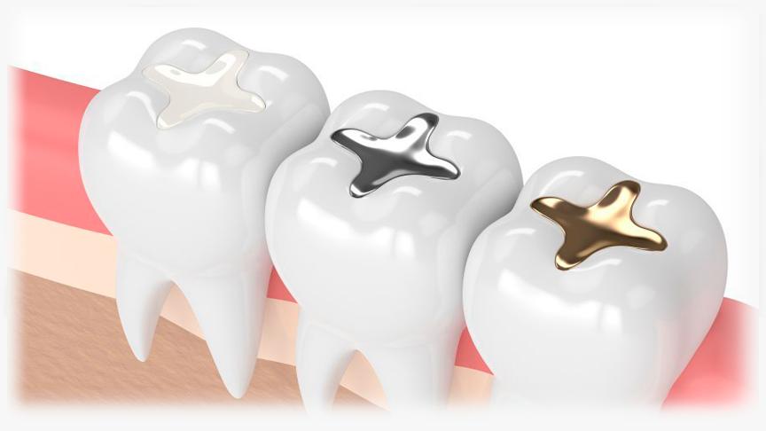 odontologia restauradora en madrid